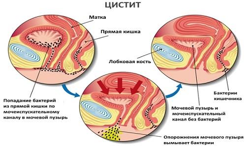 Цистит - распространенная патология, которая характеризуется воспалением мочевого пузыря и имеет множество неприятных и болезненных симптомов