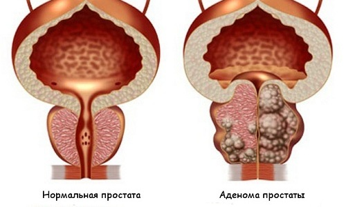 Аденома простаты — доброкачественное новообразование, рост которого провоцирует сдавливание мочевика