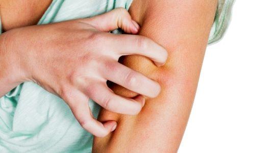 Сульфацил натрия вызывает небольшое количество побочных эффектов, главными из которых являются аллергические реакции в случае непереносимости компонентов порошка