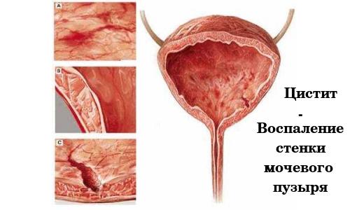Распространенность хронического шеечного цистита достаточно высока и составляет около 20% среди всех урологических патологий