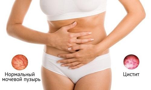 Цистит у женщин встречается намного чаще, чем у мужчин, и связано это с анатомическим строением