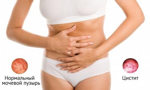 Цистит относится к инфекциям органов мочеполовой системы, способным принимать хроническое течение