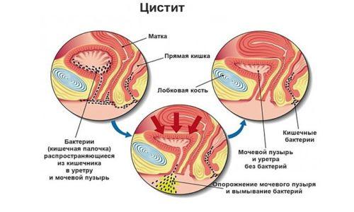Посткоитальный цистит практически всегда провоцирует нарушение менструального цикла. В данном случае важно исключить наличие урогенитальных инфекций, т. к. цистит может выступать в качестве симптома болезни мочеполовой системы