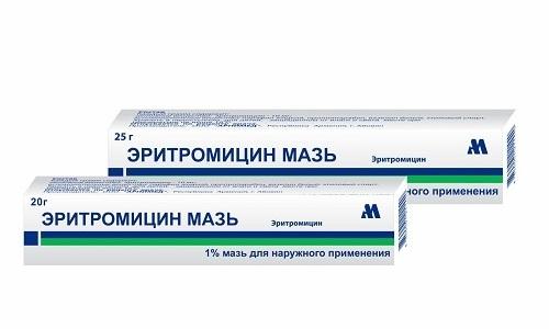Электрофорез можно делать с антибактериальным препаратом Эритромицин