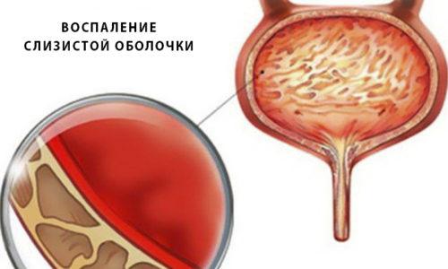 Если во время не приступить к лечению заболевания, цистит и пиелонефрит переходят в хроническую форму