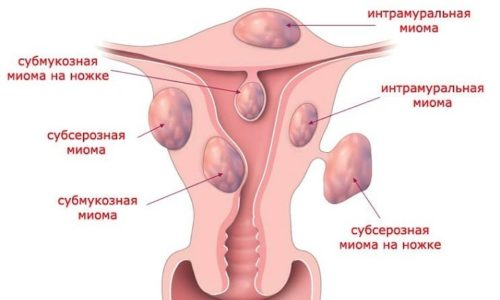Обструкция мочевика может появиться при наличии миомы