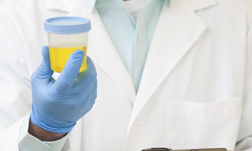 Пациент сдаст мочу на анализ, после этого врач-уролог диагностирует заболевание