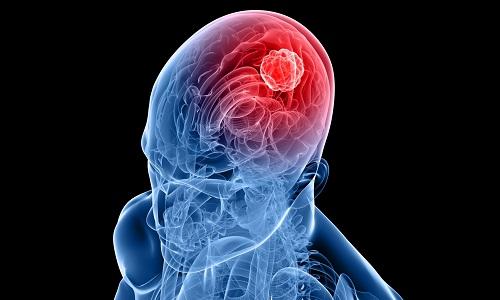 Поражение головного мозга может стать причиной неправильной работы мочевого пузыря