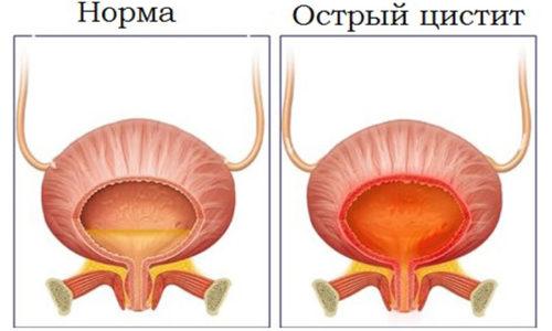 При остром цистите употребление лекарственных средств на основе шиповника нормализует мочеиспускание и ускоряет выздоровление