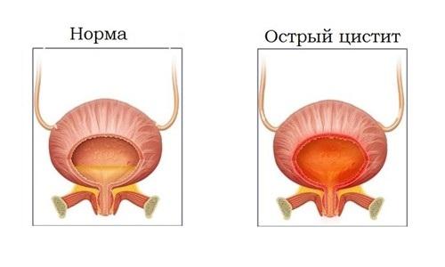 Острый цистит развивается в течение нескольких часов, воспалительный процесс не распространяется за пределы слизистых оболочек мочевого пузыря