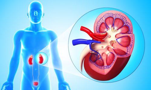 К возможным осложнения геморрагического или язвенного цистита относятся заболевания почек