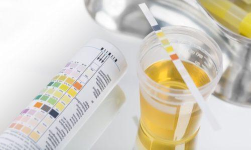 Анализ мочи при цистите делается для определения степени активности процесса и уточнения диагноза