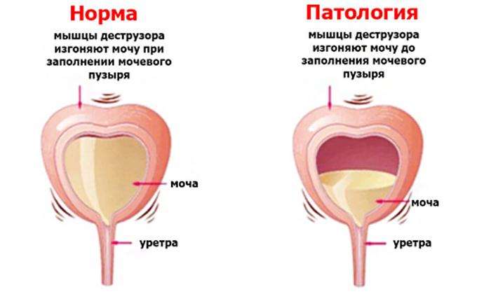 Частое мочеиспускание у женщин при климаксе