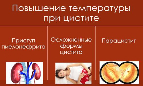 Высокая температура может указывать на такие проблемы, как пиелонефрит, осложненная форма цистита и парацистит