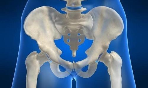При эндометриозе человек может почувствовать сильную боль в тазовой области