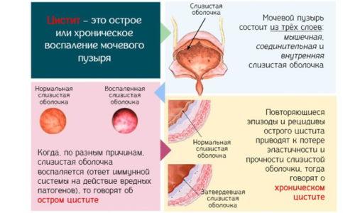 Профилактика цистита необходима для снижения риска обострений хронической формы заболевания, а также для предотвращения развития первичной патологии