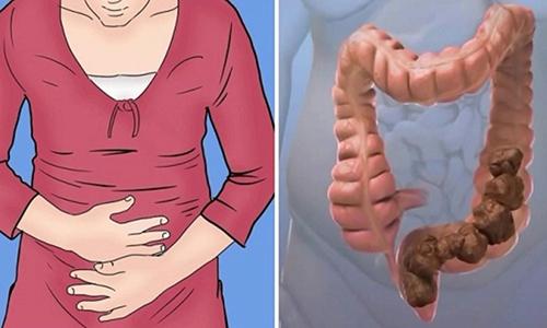 Возникновение запоров связано с давлением, которое киста оказывает на желудочно-кишечный тракт