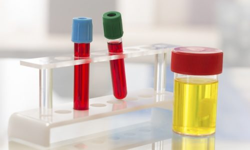 Перед тем как определиться с лечением, независимо от формы болезни, врач назначает сдачу анализов крови и мочи и другие лабораторные исследования, позволяющие выявить возбудителя и его восприимчивость к различным препаратам