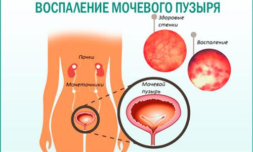 Воспаление мочевого пузыря требует применения антибактериальных препаратов, при этом продолжительность лечения может составлять от 1 до 4-6 недель